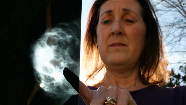 Sara Fought was 42 when a routine mammogram caught her breast cancer.