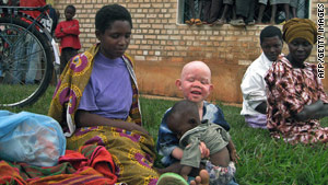 There are some 200,000 albinos in Tanzania -- this photo shows an albino child in neighboring Burundi.