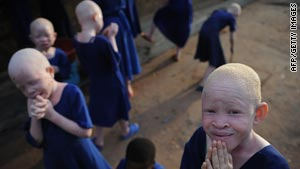 Albino children take a break earlier this year at a Tanzanian school for the blind, which has become a rare sanctuary.