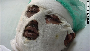 Waqar Khalid, 24, lies in a hospital four days after a suicide bombing wounded him at a Pakistan university.