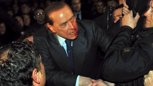 Berlusconi was struck in the face with a metal model of Milan's cathedral during a campaign rally.