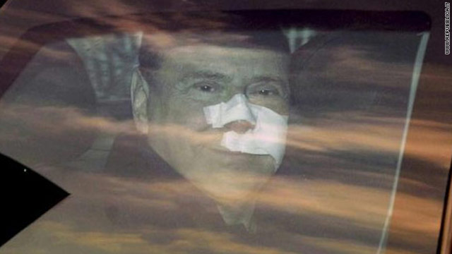 Silvio Berlusconi pulls away from hospital in Milan after four days of treatment.