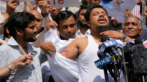 New York cab driver Ahmed Sharif shows the gashes in his arm and neck.