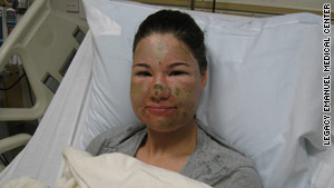 Bethany Storro says a pair of sunglasses that she had just bought prevented the acid from getting to her eyes.