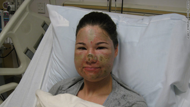 Police became suspicious because Storro's face did not match photos of other recorded acid attacks.