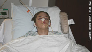 Michael was burned over 65 percent of his body after other teens allegedly set him on fire.