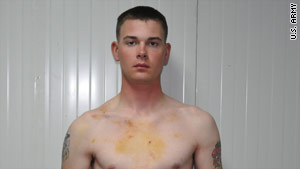 Pfc. Stoner posed for these pictures, taken by the U.S. Army, to show his physical injuries.
