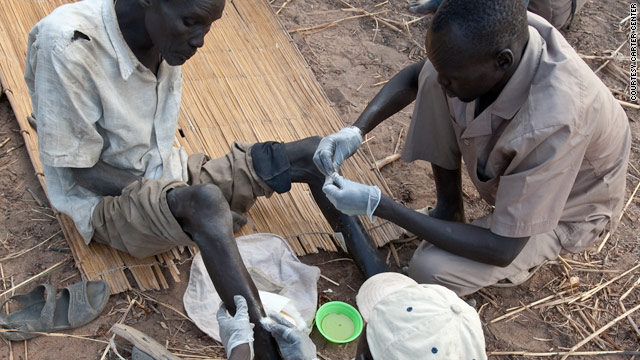 Dario Mere, who lives in Terekeka county of southern Sudan receives treatment on his leg from two health workers.