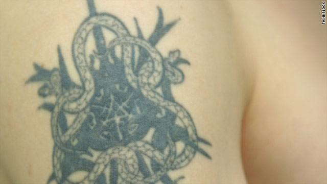 Tattoos are meant to be permanent, but there are still a few methods for removal or concealment.