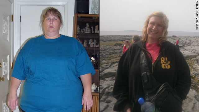 Karen Daniel weighed 375 pounds before embarking on a weight loss journey.