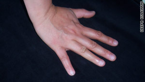 Kulkarni's pinky grew back after she persuaded a doctor to administer a procedure she had read about on the internet.