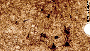 Microscopic images show large numbers of tau (dark brown spots) in the areas of damage.  In healthy brain tissue, there would be no such protein tangles.