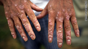 Some say exposure to Agent Orange can lead to skin lesions.