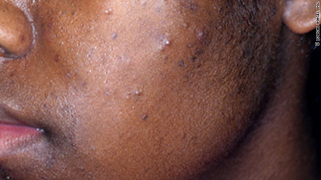 Genetics and hormonal changes are big factors in acne, but research is ongoing to find other connections.