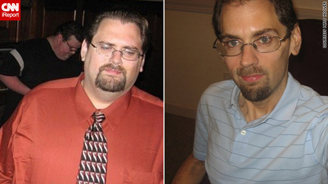Matt Hoover lost about 200 pounds, from his starting weight near 450 pounds in 2007.