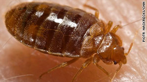 Bedbug calls have increased by 81 percent since 2000, according to the National Pest Management Association.