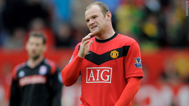 Wayne Rooney grimaces in pain after pulling up with a groin injury in Manchester United's 4-0 win over Stoke on Sunday.
