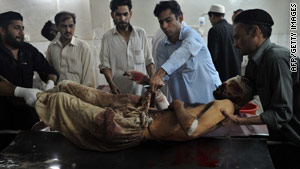 Volunteers help shift an injured man Tuesday at a Peshawar, Pakistan, hospital after a car bomb attack in Kohat.