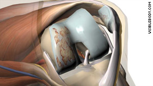 Arthritis and damage to knee cartilage (the brown scraped area at left) can cause great pain.