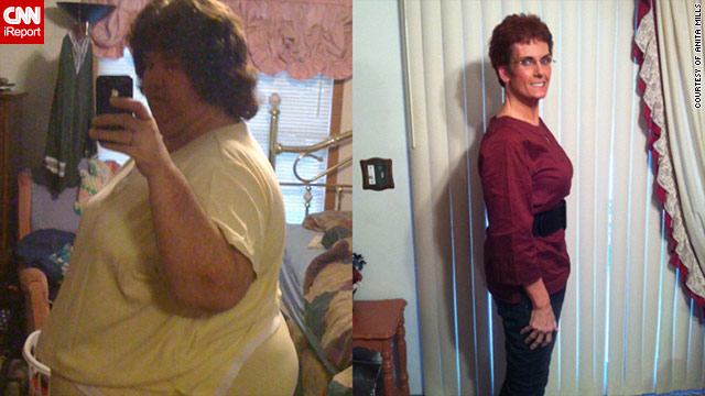 Anita Mills, before and after, losing 232 pounds without crazy diets or extreme exercise trends.