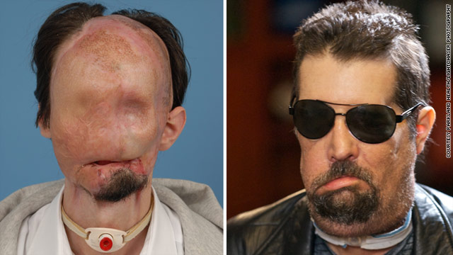 Dallas Wiens, 26, lost much of his face after an accident. He received a new face in a landmark transplant operation.