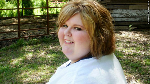 Brandy Sanders, 19, who once weighed 383 pounds, has lost 33 pounds since her surgery in February.