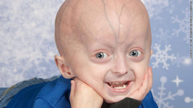 Progeria, seen in this boy, causes premature aging, hair loss and physical problems seen in the elderly.