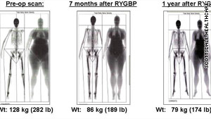 This dexa scan of a woman who underwent bariatric surgery shows where she lost her body fat.