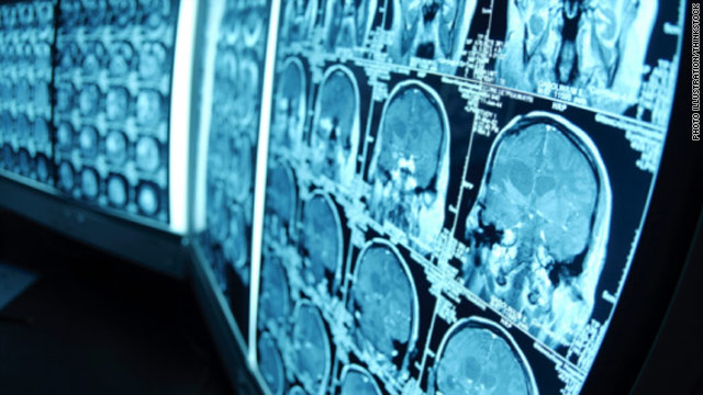 Scientists are looking for signs of Alzheimer's in the brain even before symptoms begin.