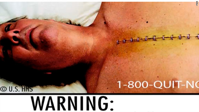 In June, the FDA unveiled nine new warning labels, complete with graphic photos.