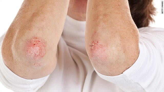 "Expert says the analysis underscores the ""importance of doing large, long-term randomized studies of psoriasis therapies."""