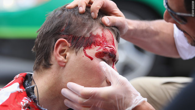 Janez Brajkovic is treated after crashing out of the fifth stage of the Tour de France. He later retired.