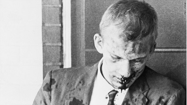 James Zwerg's physical wounds healed after he was attacked by an Alabama mob, but the emotional wounds festered.