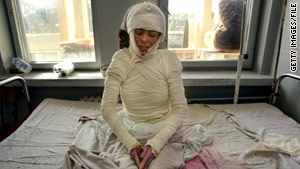 A 22-year-old woman, severely burned from self-immolation, sits on her hospital bed in Herat, Afghanistan, in 2004.