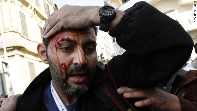 Injured Associated Press photographer Khalil Hamra is pictured during clashes in Cairo's Tahrir square on February 3.