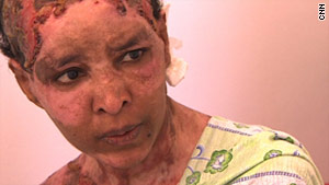 Shweyga Mullah, a nanny for Hannibal and Aline Gadhafi, says Aline burned her with boiling water.