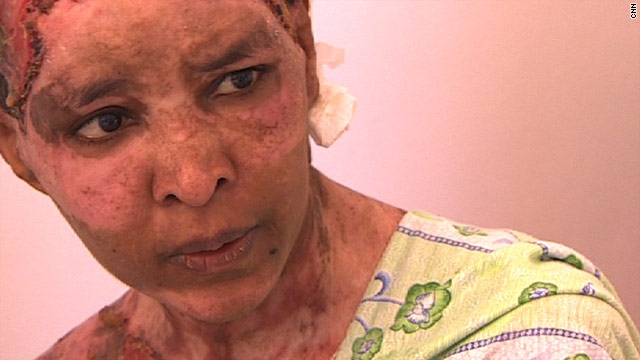 Burned nanny leaves Libya for Malta