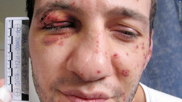 Danish police photograph shows Lors Doukaev with the scars he sustained when he set off a bomb.