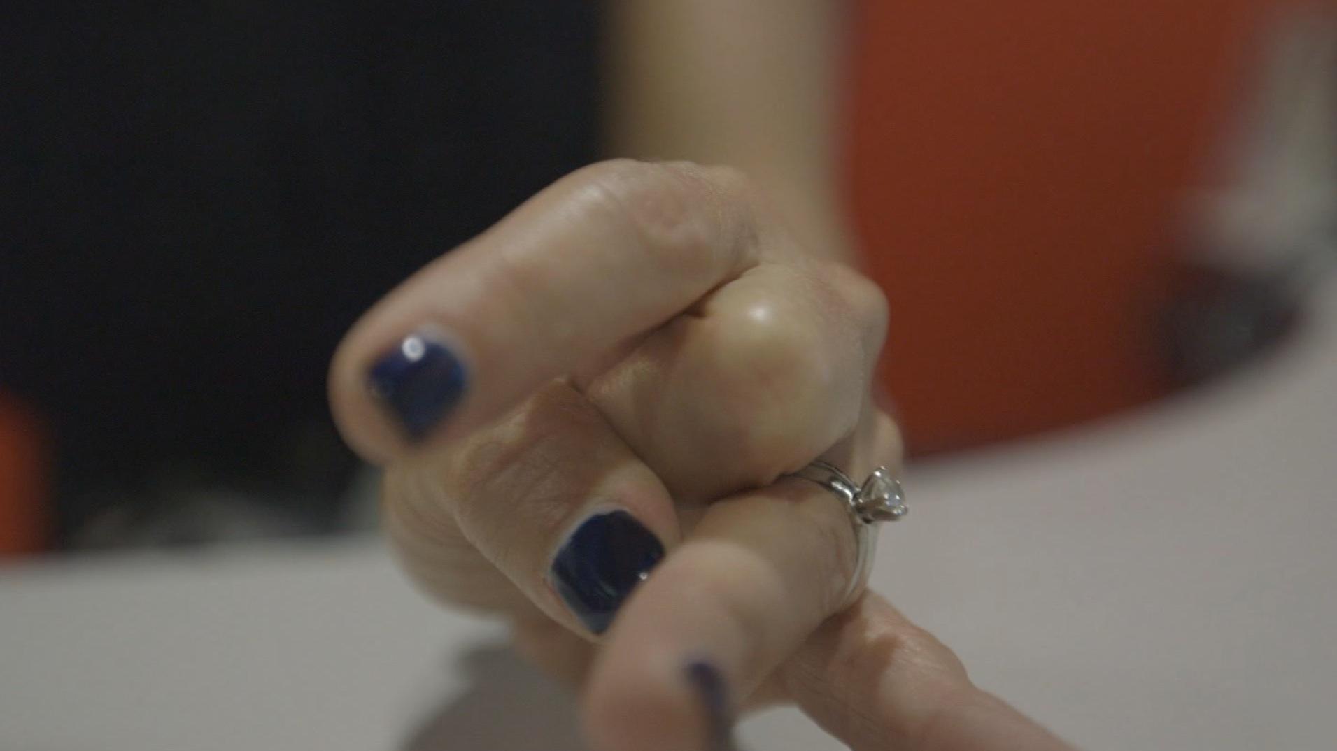 فرقعة الأصابع.. هل تضر أم هي تحذيرات وهمية؟