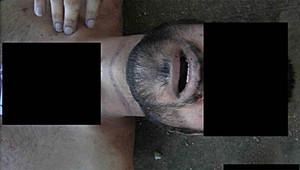 التقرير يزعم أن هذه الصورة تظهر آثار علامات بسبب الخنق.