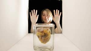 القلوب المتوقفة توفر فرصة لمنتظري زراعة الأعضاء