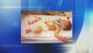 عائلة أمريكية تعيش محنة بسبب انزلاق طفلها من بين يدي الممرضة بعد ولاته