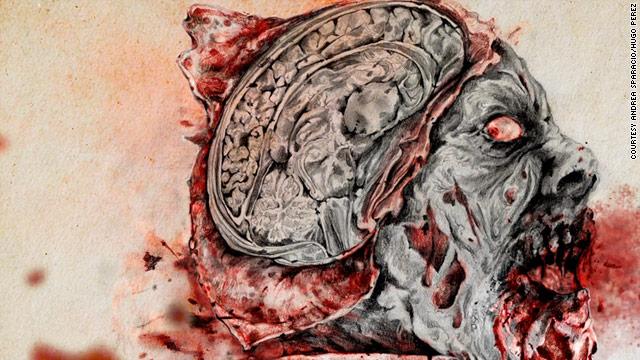 Cerebro de un zombie