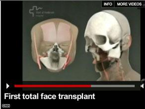 مقاطع تصور مراحل العملية الجراحية التي قال الأطباء إنها أول عملية لزراعة وجه كامل