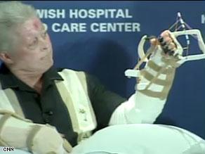 المريض يحرك أصابعه