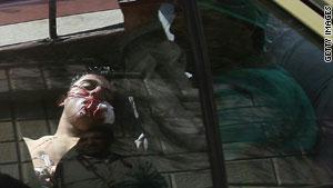 شاب سقط برصاص قوات الأمن في درعا الأربعاء