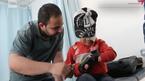 من لاجئ سوري مبتور الساق إلى فني طباعة أطراف صناعية