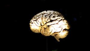 صورة لدماغ بشري