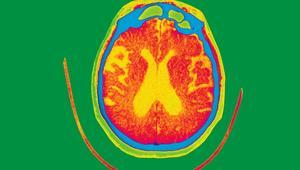 هل أنوفنا وعيوننا تحوي مفتاح الكشف عن مرض الزهايمر؟