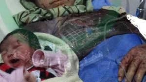 """""""أمل"""" سوريا ضحية منذ الولادة.. طفلة تولد بشظية على جبهتها"""